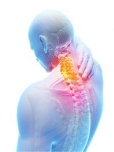 shermer's neck pain