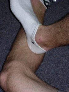 calf cramps remedy opposite foot