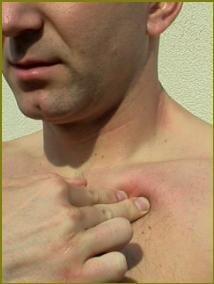 biceps pain treatment
