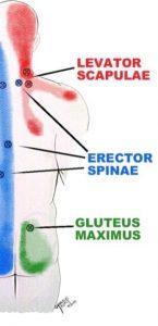 headache relief shoulder