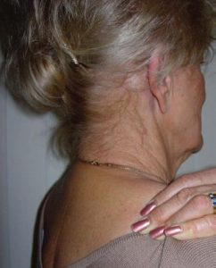 Treating Levator Scapulae Muscle